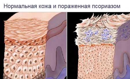Мехлем за псориазис - Рецепта | psorilin.hriciscova.com